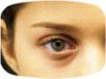 come usare lenti contatto firenze - daltonismo - occhiali da sole